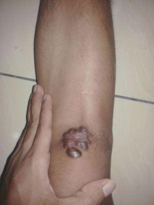 keloid di lutut